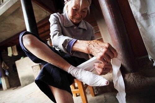 Foot Binding Ancient Chinese Tradition China S Dungan People Of Gansu Windhorsetour China Tibet Travel Tour Guide Service